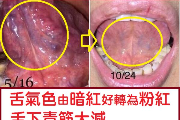 ⑹好書推薦:圖解 觀舌治病 糖尿病高血壓