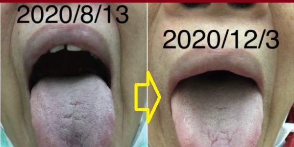 (7)舌質瘀暗改善=深層血液循環改善=細動脈硬化及微血管梗塞改善
