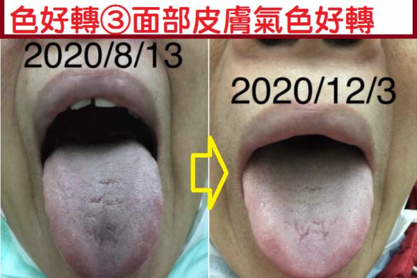 ⑹舌質瘀暗改善=深層血液循環改善=細動脈硬化及微血管梗塞改善