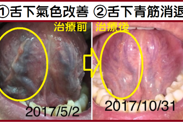改善動脈硬化(化瘀通血路)→防中風[短視頻]