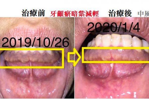 牙齦瘀暗紫減輕