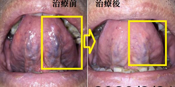 (4)中風.心肌梗塞看舌就知道?真的嗎?