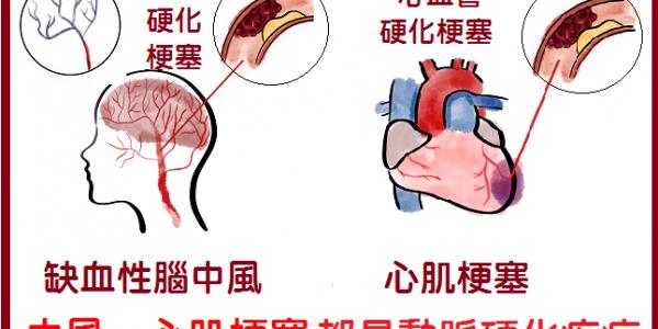 (3)可以一眼看出那些人是心肌梗塞的高危險群嗎?