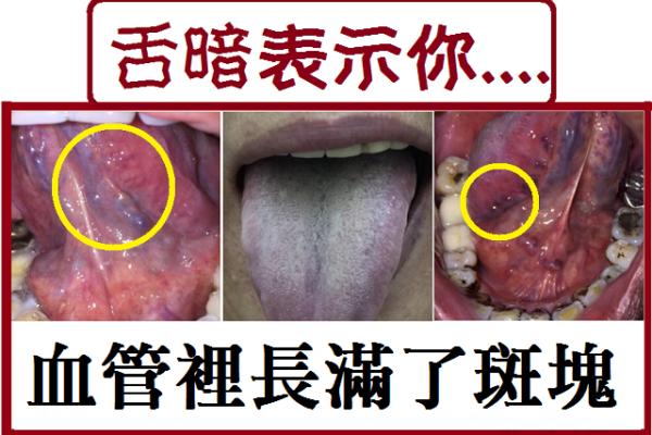 《2》舌暗藏中風.心肌梗塞危機